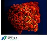 Wichtig Erreger in der Spitex-Pflege - HIV - rissip Onlinetraining