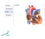 Herzinsuffizienz  - rissip Onlinekurs - Ischler Institut